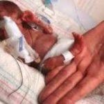 Ученые: определена причина преждевременных родов